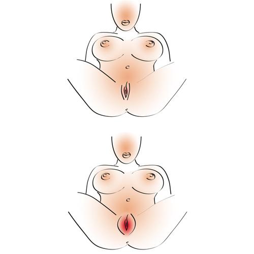 Vagina Pomp Gebruiken